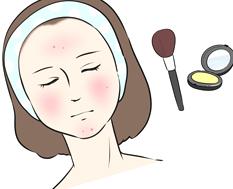 にきび治療と化粧